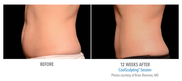 /assets/2435/coolsculpting-ab-biesman-ptia-f-2set-12wk-left.jpg