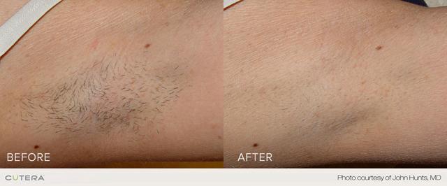 Laser Hair Reduction - Arm