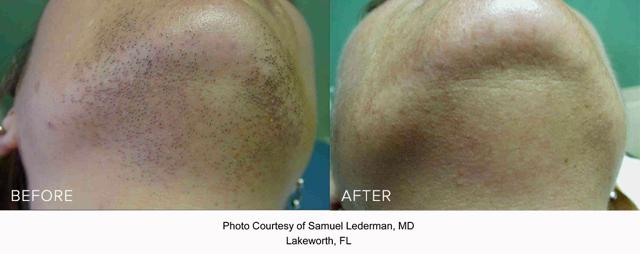 Laser Hair Reduction - Chin