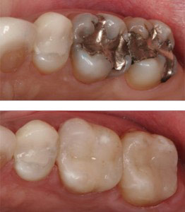 cosmetic dentistry bonding | Memphis Center for Family and Cosmetic Dentistry