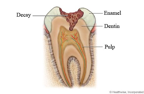 Can I Reverse a Cavity? - Memphis Dentist Blog