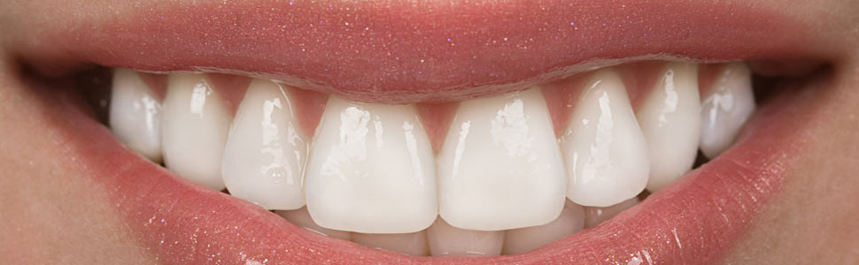 porcelain veneers memphis | veneers Memphis | Memphis Center for Family and Cosmetic Dentistry