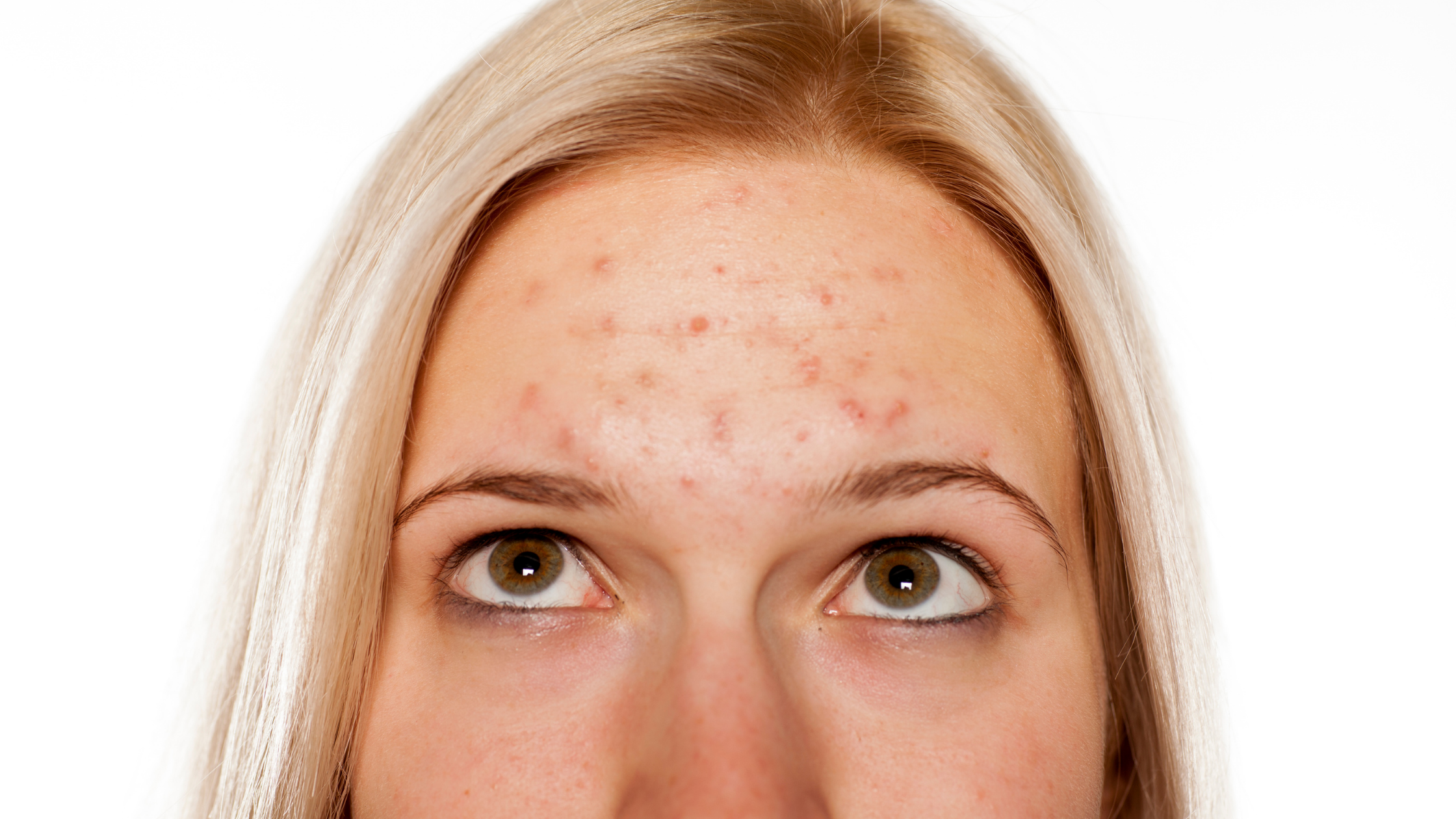 blond female forehead with acne