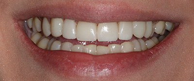 Picture of Patient's Teeth After Treatment at Bateman Dentistry