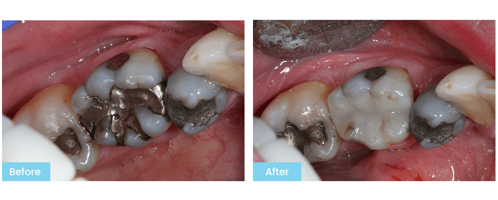 Picture of Patient's Teeth Before & After Treatment at Bateman Dentistry