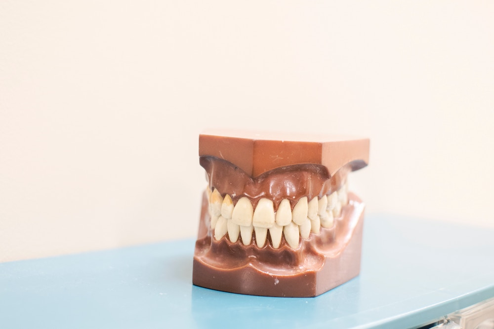 Picture Of Model Teeth