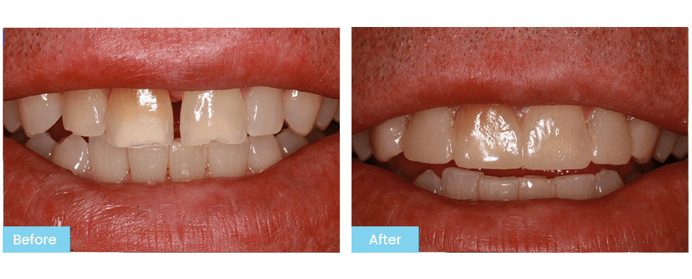 Picture of Patient's Teeth Before Treatment at Bateman Dentistry