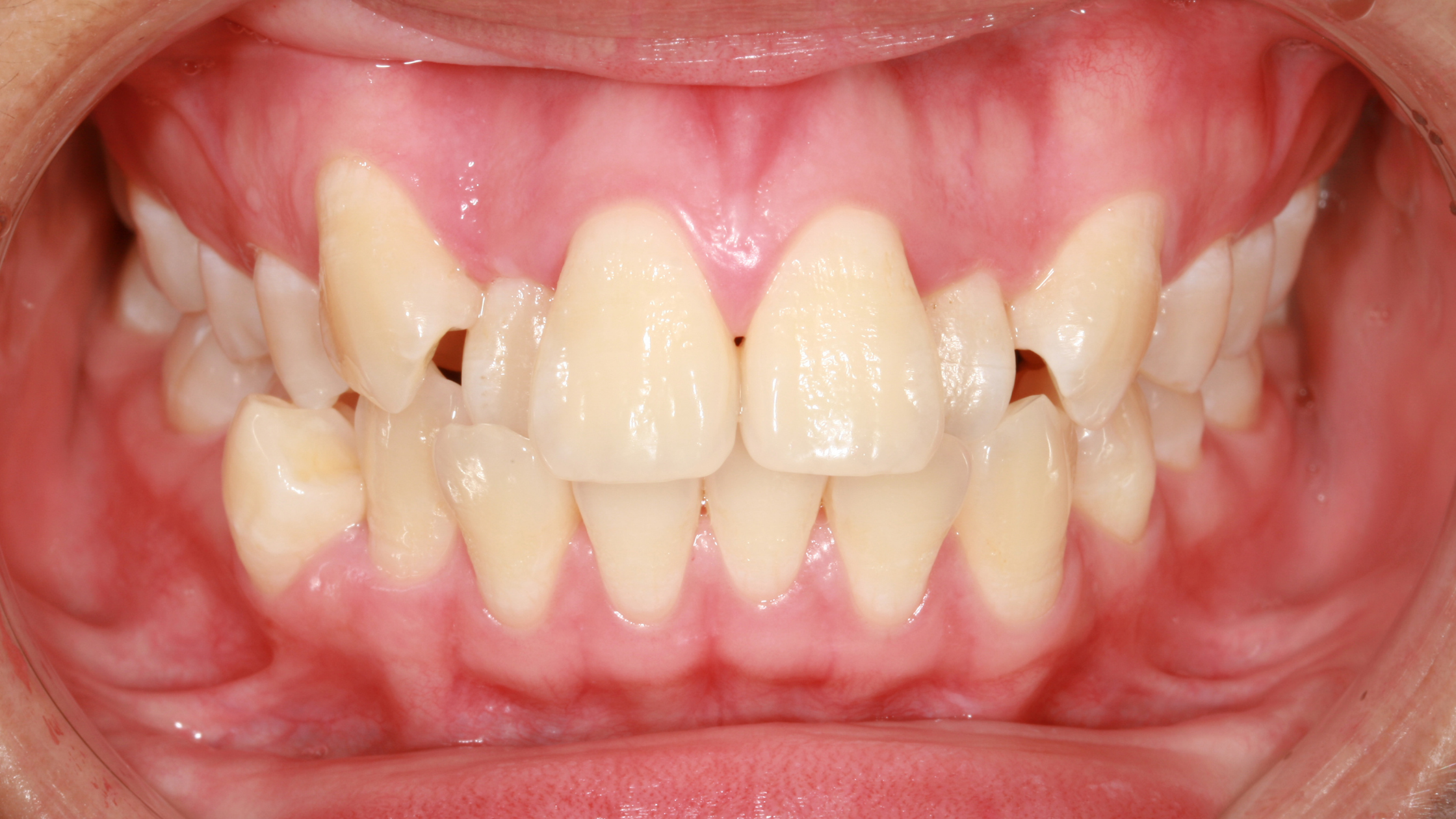 crowded teeth in a mouth