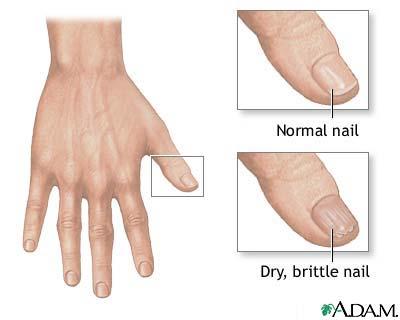 biotin deficiency symptoms